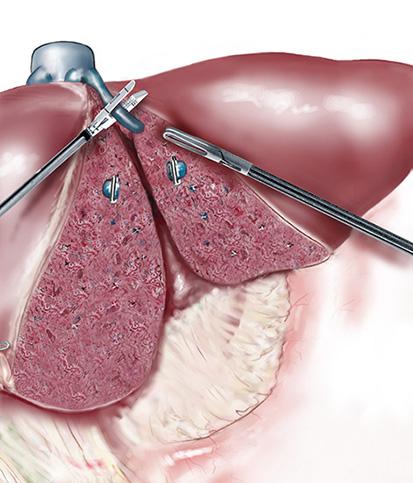 Opération de Tumeurs du lobe gauche et droit du foie - Groupe Must ...